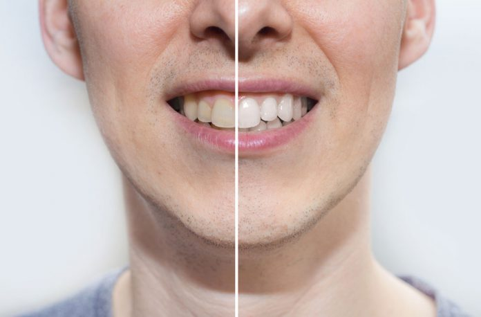 6 Natural Ways to Make Your Teeth Sparkle