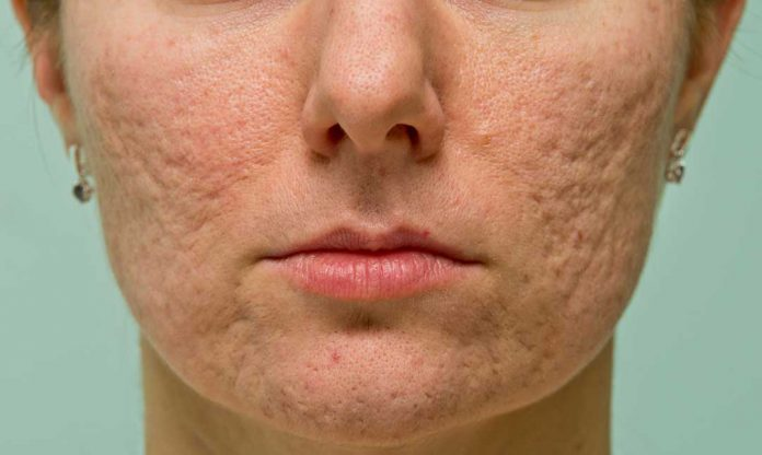 Acne Scars: Facts, Causes, Prevention, and Treatments