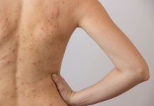 Back Acne Facts, Causes,Prevention and Treatments