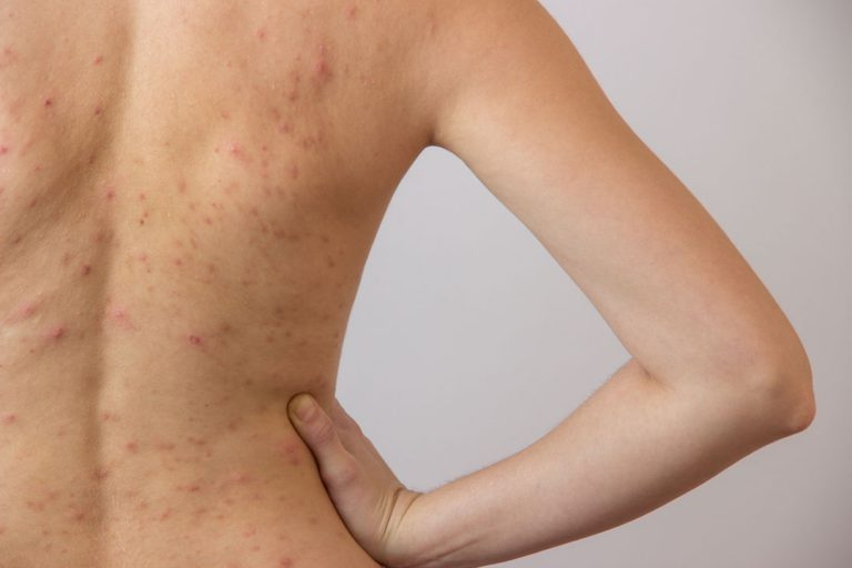 Back Acne: Facts, Causes, Prevention, and Treatments