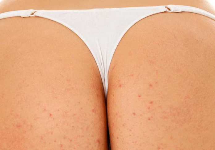Butt Acne: Facts, Causes, Prevention, and Treatments