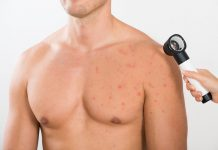 Chest Acne: Facts, Causes, Prevention, and Treatments