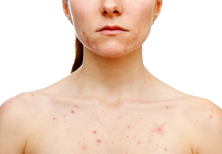 Cystic Acne: Facts, Causes, Prevention, and Treatments