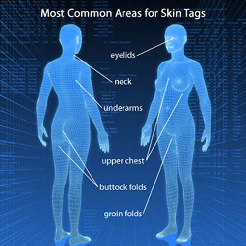 Most Common Areas For Skin Tags