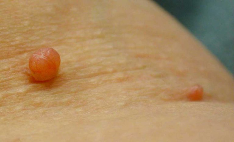 The Most Popular Natural Skin Tag Removal Treatments