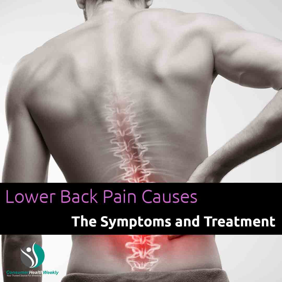 Lower Back Pain Causes The Symptoms and Treatment
